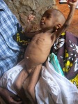 Child with severe malnutrition that presented to the outreach