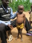 Mutinda, CHW, and Wambua, small child with Rickets now growing well with help from GHP-provided medication